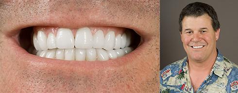 Teeth Whitening Palm Springs